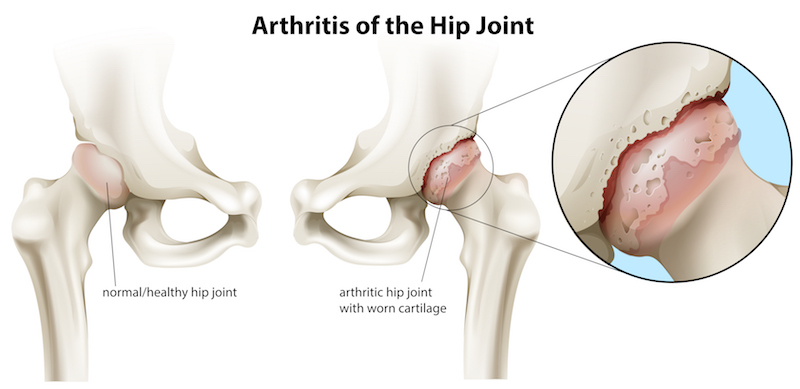 Surgery Is Usually Considered In Advanced Stages Of Hip Oa When There Is Severe Pain And Stiffness
